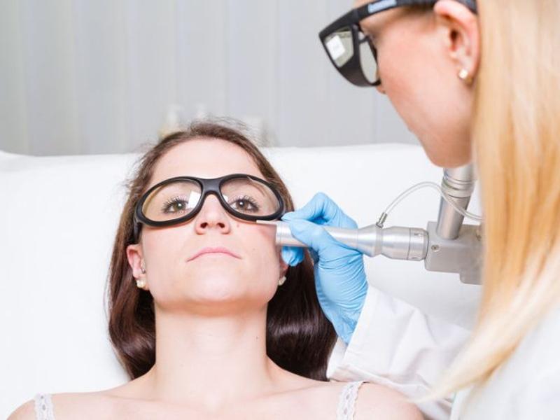 Utilización del láser Neodimio-YAG para el tratamiento de manchas rojas